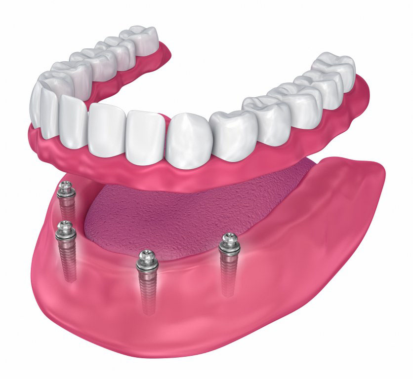 Implant Eetained Dentures